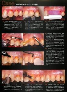 根本の虫歯のCR