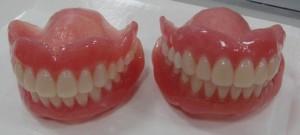 入れ歯画像1