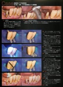前歯のプラスチックがかけた時もCR