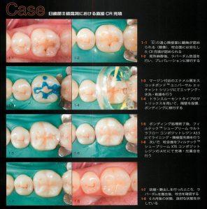 奥歯の溝のCR